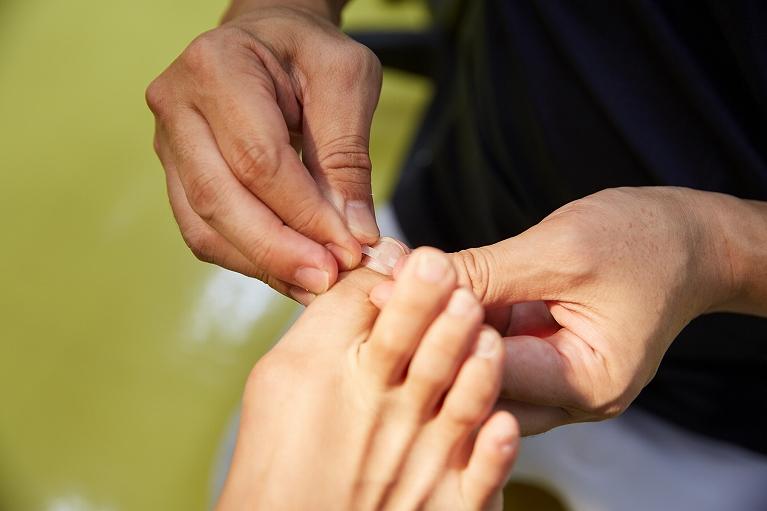 巻爪治療|郡山つつみ鍼灸整骨院
